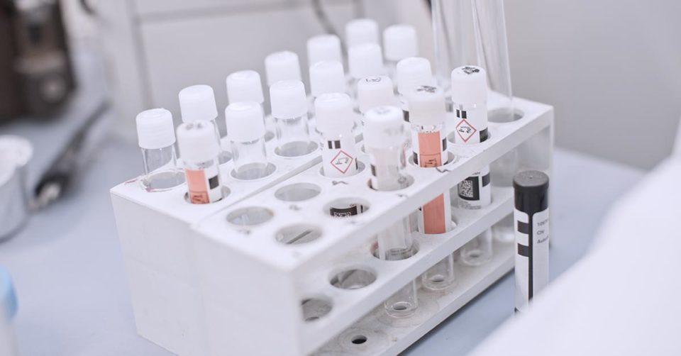 immagine di attrezzatura da laboratorio utilizzata per analizzare le sostanze chimiche secondo il regolamento REACH
